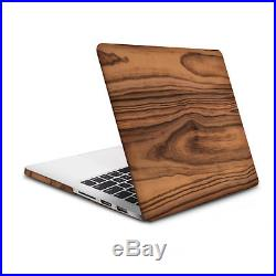 Kwmobile HARDCASE CASE FOR APPLE MACBOOK PRO RETINA 13 (FROM MID 2011)